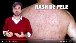 VÍDEO: Primeiros Sintomas do HIV