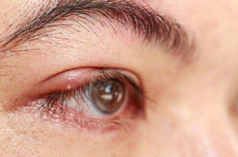 ORZUELO – Causas, síntomas y tratamiento