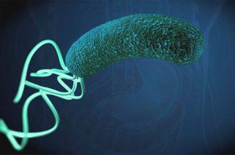 Helicobacter pylori – Síntomas, causas y tratamiento