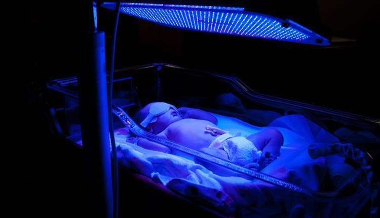 Icterícia neonatal