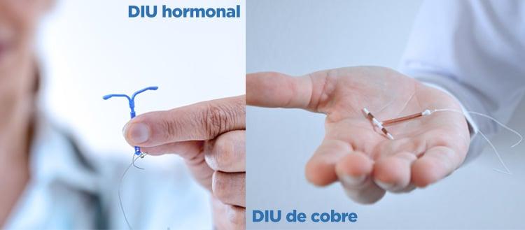 Imagem do DIU de cobre e do DIU hormonal