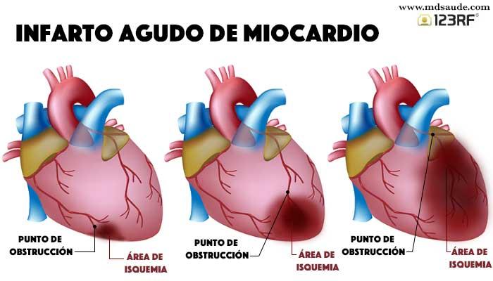 infarto agudo del miocardio