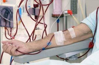 INSUFICIÊNCIA RENAL AGUDA – Causas, sintomas e tratamento