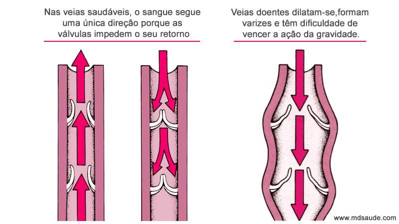 Sistema de válvulas das veias