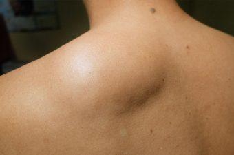 LIPOMA – Causas, sintomas e tratamento
