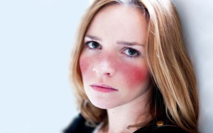 Sintomas do lúpus - Rash malar