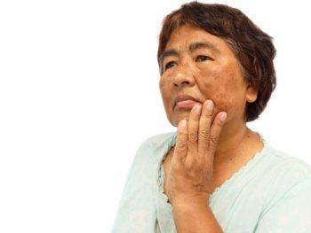 MELASMA – Sintomas, Causas e Tratamento