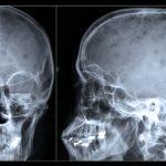 MIELOMA MÚLTIPLO – Sintomas e Tratamento
