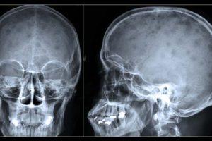 Mieloma múltiplo – Sintomas, prognóstico e tratamento