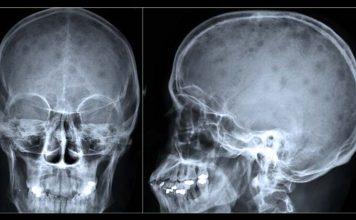 Mieloma múltiplo - RX crânio