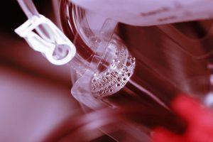 Síndrome mielodisplásica – Mielodisplasia (SMD)