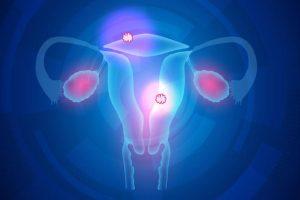 Mioma uterino – Tumor benigno do útero