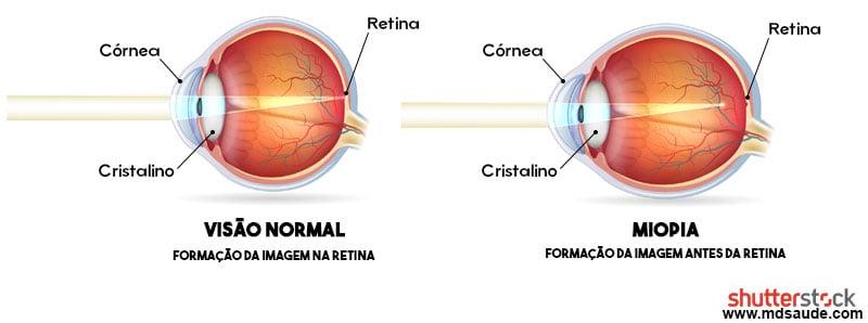 Em situações normais, o formato do olho, da córnea e do cristalino são bem  arredondados e permitem que os raios de luz sejam refratados de forma a se  unirem ... 6631ac22c5