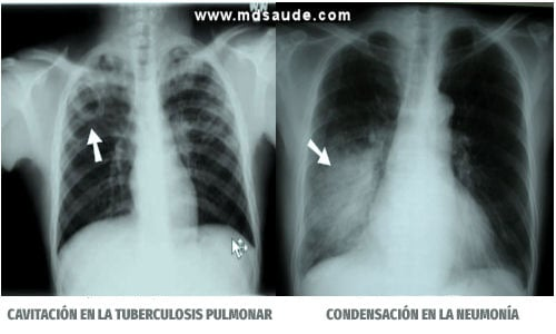Neumonia y tuberculosis
