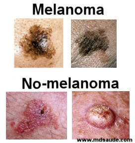 Melanoma se produce perdida de peso repentina