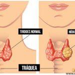 NÓDULOS TIROIDEOS – Síntomas, Causas y Riesgos de Cáncer