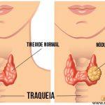 NÓDULO NA TIREOIDE – Sintomas, Causas e Risco de Câncer