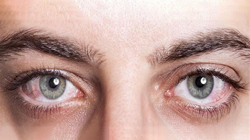 Olhos secos e avermelhados nas áreas em contato com o ar