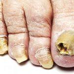 MICOSE DE UNHA – ONICOMICOSE – Causas, Sintomas e Tratamento