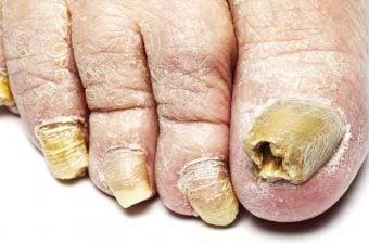 HONGOS EN LAS UÑAS (onicomicosis) – Síntomas y tratamiento