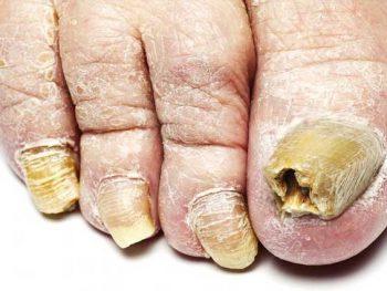 MICOSE DE UNHA – Causas, Sintomas e Tratamento