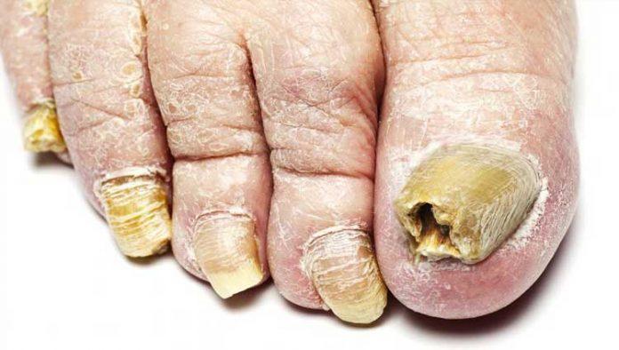 El hongo a las pieles de los pie