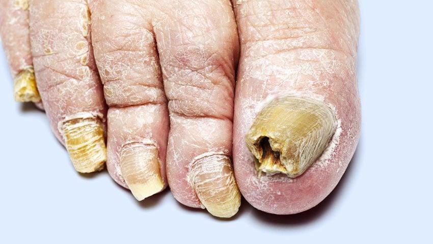 síntomas de infección por hongos en el cuerpo