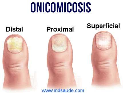 Como se ve el hongo en los pies entre los dedos al niño