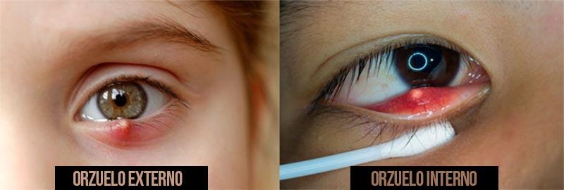 tratamiento medico del orzuelo en el ojo
