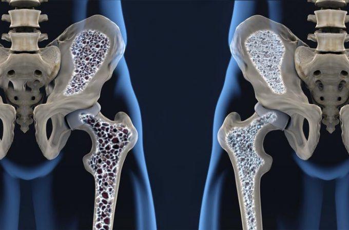 tomar agua adelgazar tibia bone
