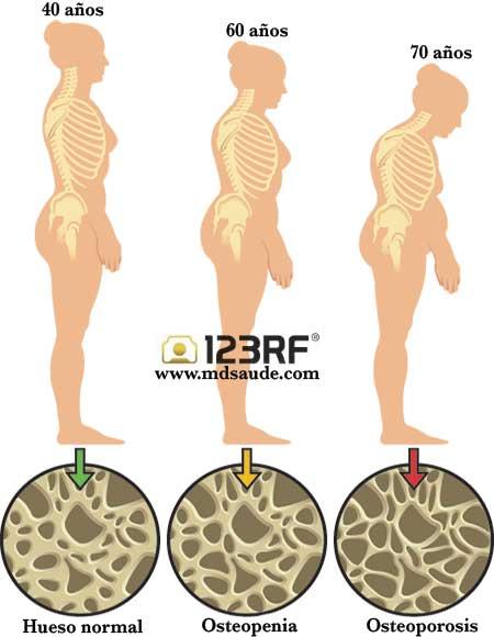 como aumentar masa muscular rapidamente con esteroides