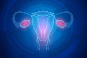 Síndrome de ovario poliquístico – Síntomas, Causas y Tratamiento