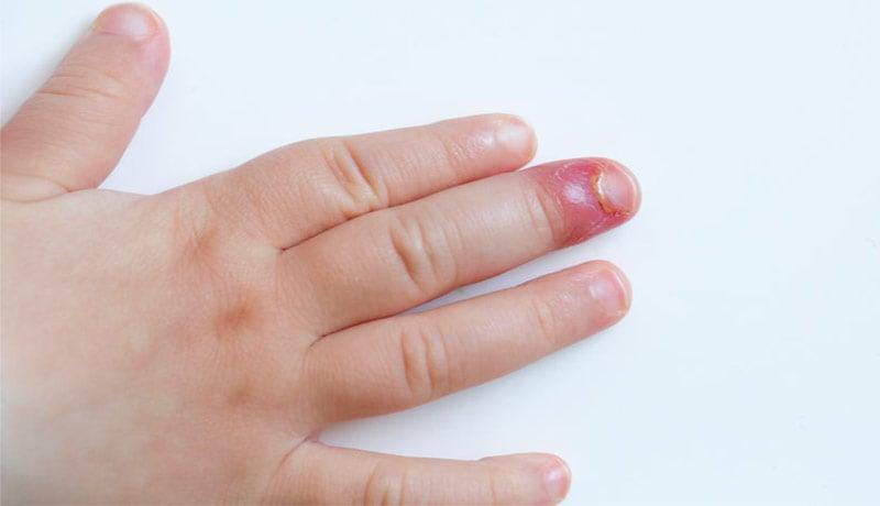 Paroníquia no dedo da mão