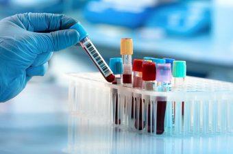PROTEÍNA C REATIVA – Exame de sangue PCR