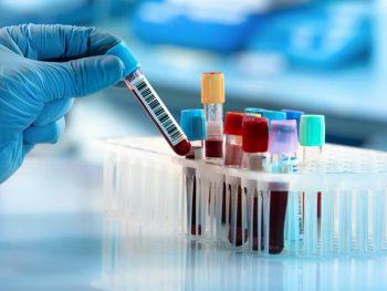 PROTEÍNA C REATIVA – EXAME PCR