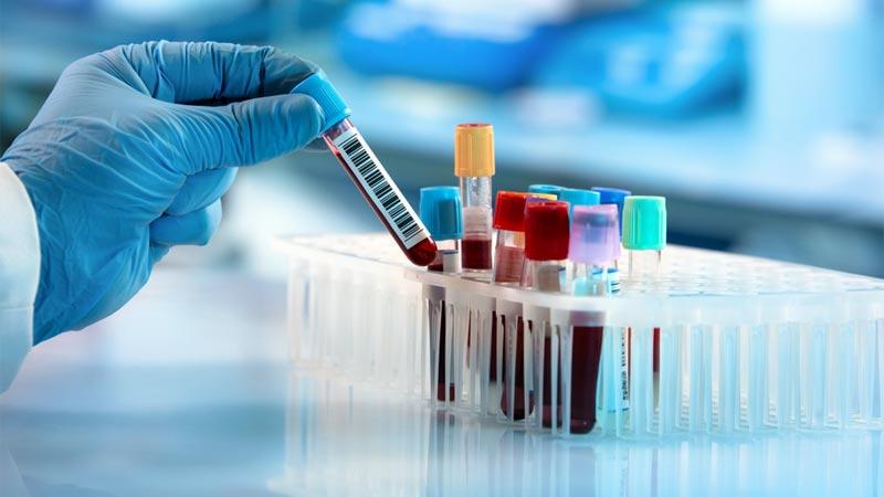 proteína c reativa exame de sangue pcr md saúdeproteína c reativa \u2013 exame de sangue pcr