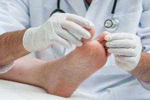 Frieira (pé de atleta) – Micose nos pés