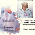 PERICARDITE AGUDA – Sintomas e Tratamento