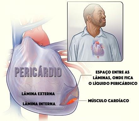 pericárdio - pericardite
