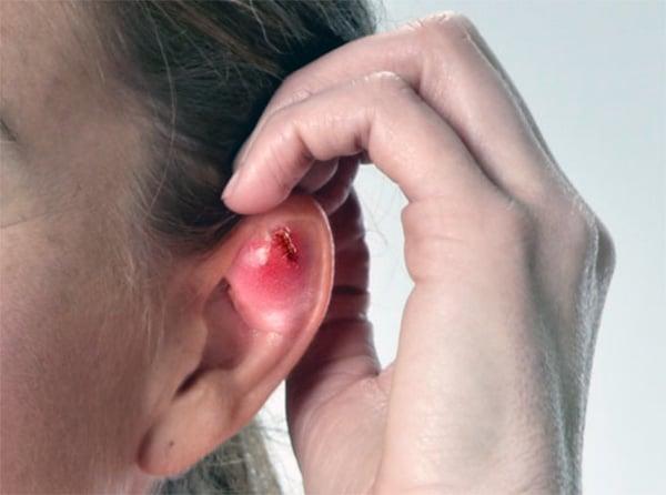 Infecção da cartilagem da orelha pelo piercing