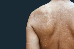 PITIRIASIS VERSICOLOR – Causas, Síntomas y Tratamiento