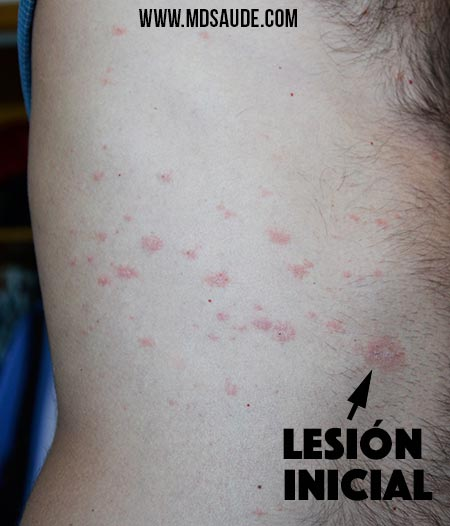 Mosquito Bites: Symptoms and Types of Mosquito-Borne ...