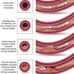 Causas de fibrilacion auricular