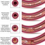 INFARTO DO MIOCÁRDIO – Causas e Prevenção