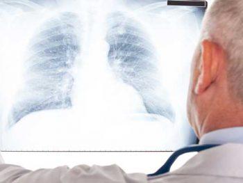 PNEUMONIA – Sintomas, Causas e Tratamento