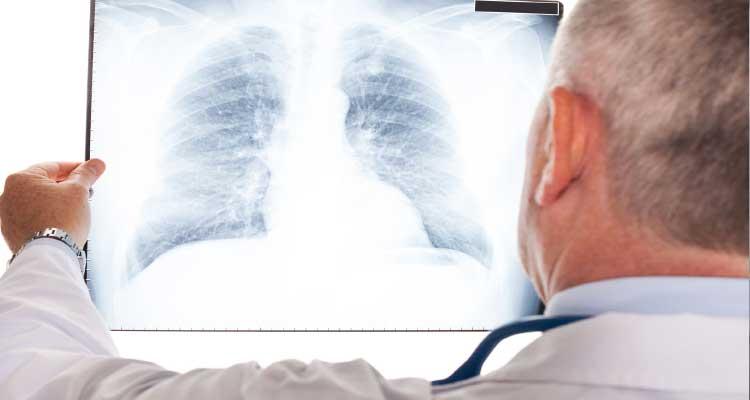 duelen los pulmones con neumonia