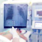 PNEUMOTÓRAX – O que é, Causas, Sintomas e Tratamento