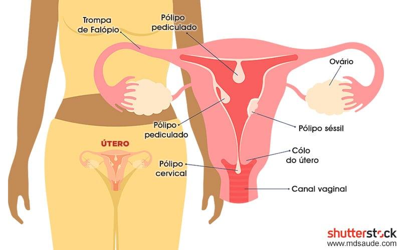 Pólipos endometriais