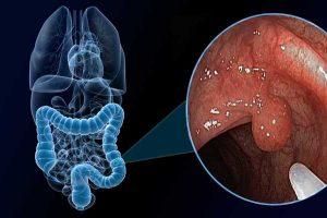 PÓLIPOS INTESTINALES – Síntomas y Tratamiento