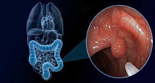 PÓLIPOS INTESTINALES – Síntomas y Tratamiento 2